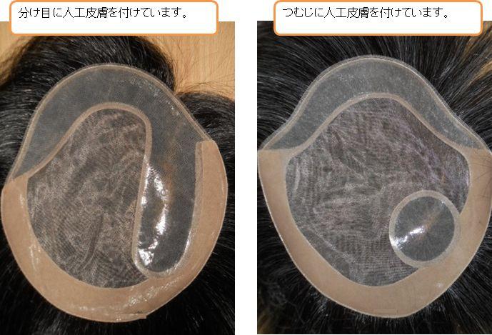 つむじや分け目に人工皮膚を付けています