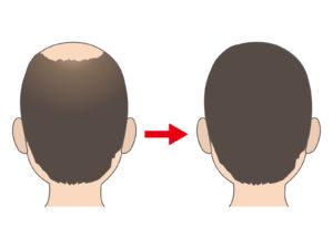 頭頂部に植毛?