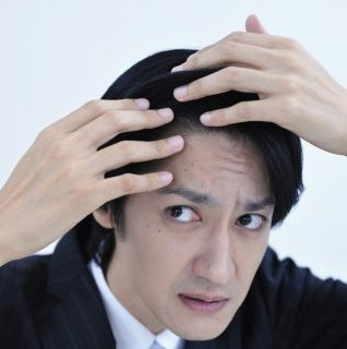 分け目の脱毛