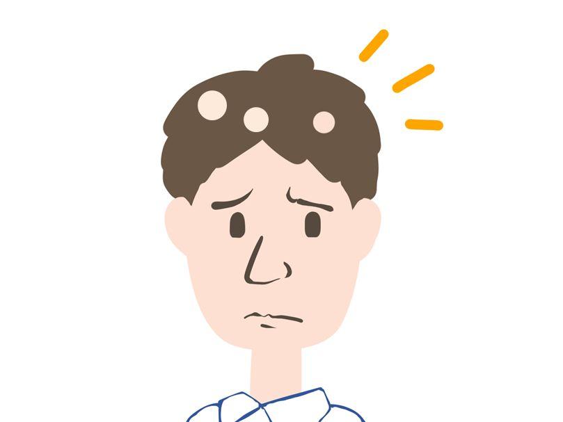 円形脱毛症の原因と症状